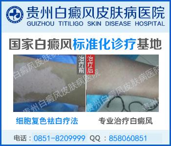 简单介绍3种白癜风疾病的诊断检查