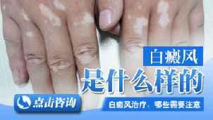 白癜风疾病的症状有哪些特点