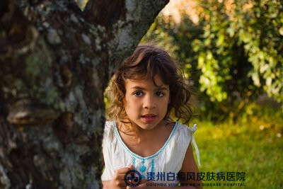 儿童白癜风治疗有哪些禁忌